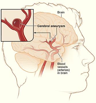 Cerebral_aneurysm_NIH
